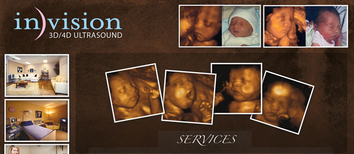Invision Ultrasound Project